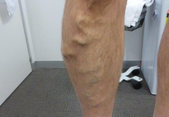 Do Varicose Veins Need to Be Treated?