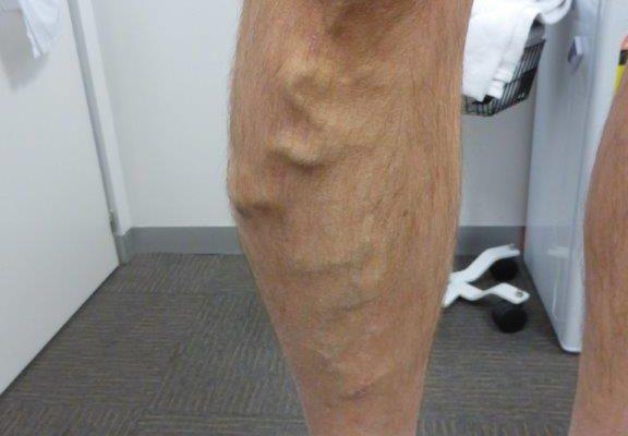 Do Varicose Veins Need to Be Treated?